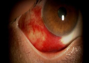 赤い 目頭