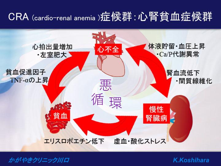 CRA (cardio-renal anemia )症候群:心腎貧血症候群