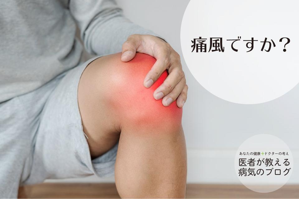 「足がじんじんします、ピリピリします、痛風ですか?」痛風や尿酸に関してのよくある質問に答えます。