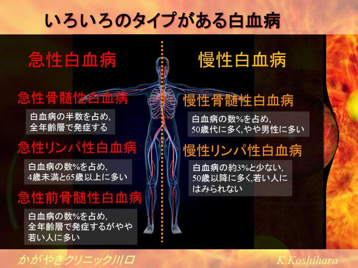 いろいろなタイプの白血病