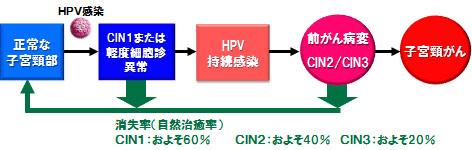 子宮頸がんの自然史 -HPV感染~異形成~がん-