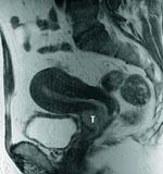 子宮頸がんの診断
