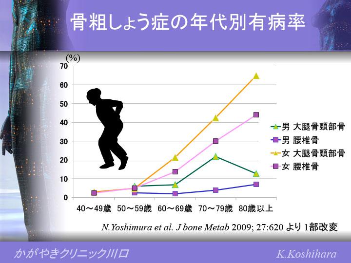 骨粗しょう症の年代別有病率