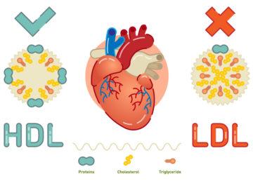 コレステロールHDL LDL