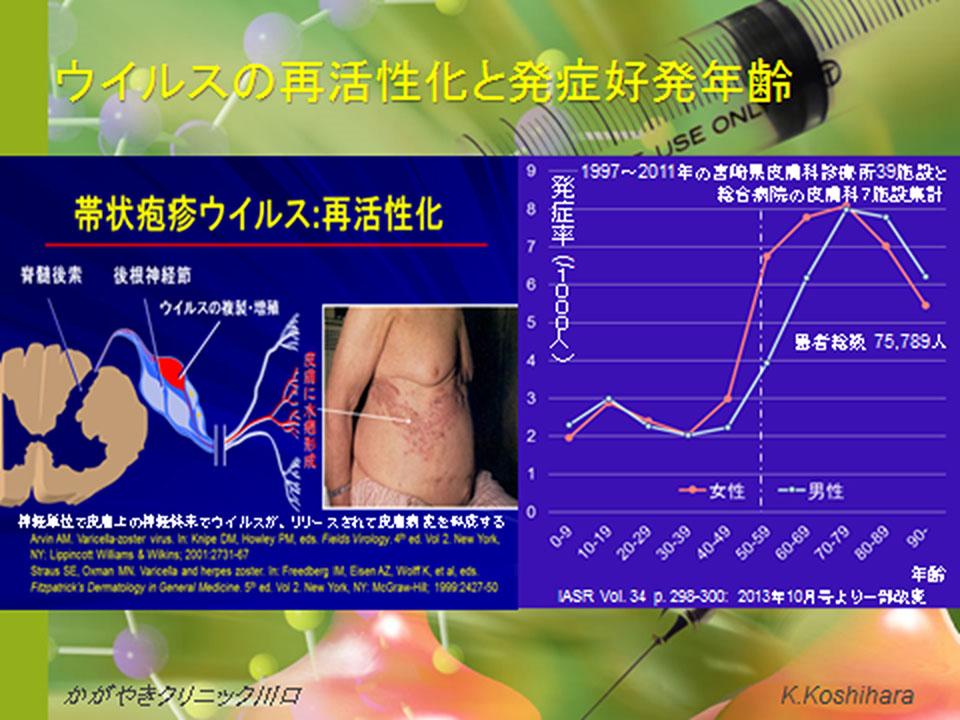 ウイルスの再活性化と発症好発年齢